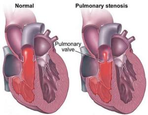 Illustration of pulmonary stenosis